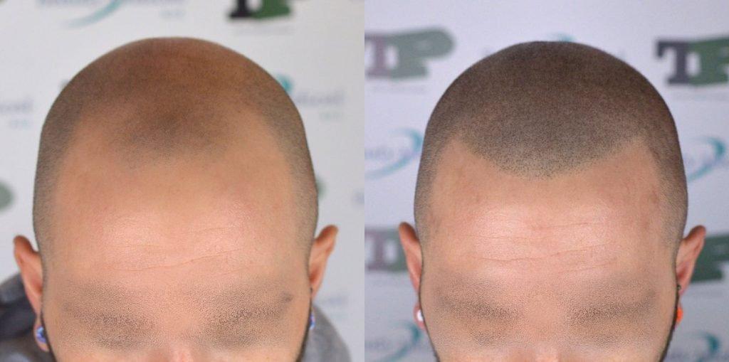 tricopigmentazione-effetto-rasato