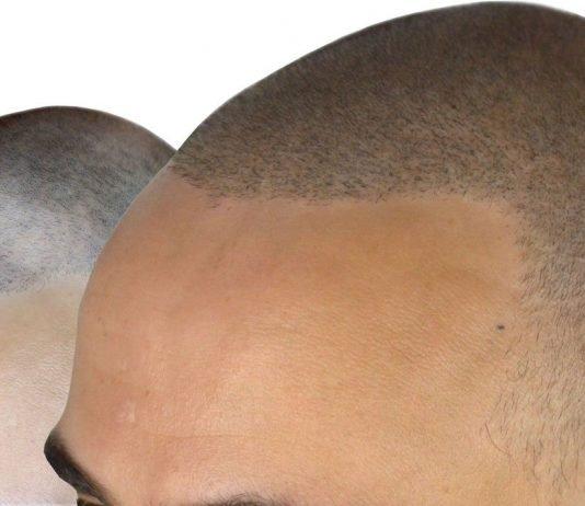tricopigmentazione temporanea